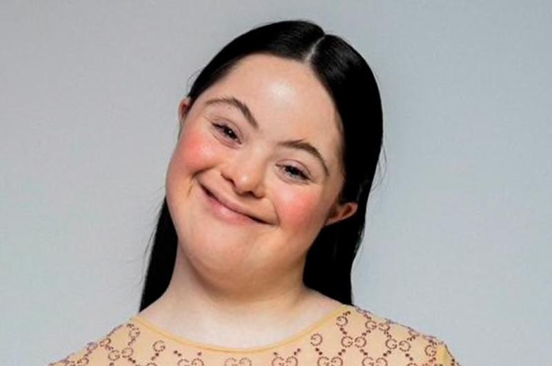 Modelo con síndrome de Down es el nuevo rostro de Gucci